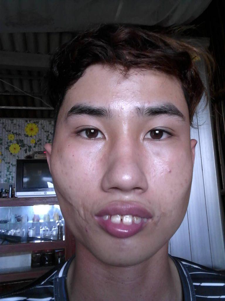 anh trai xau (8)